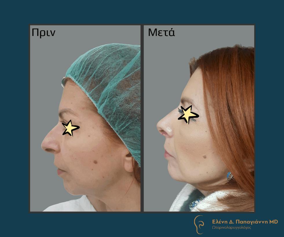 πλαστική μύτης γυναίκα