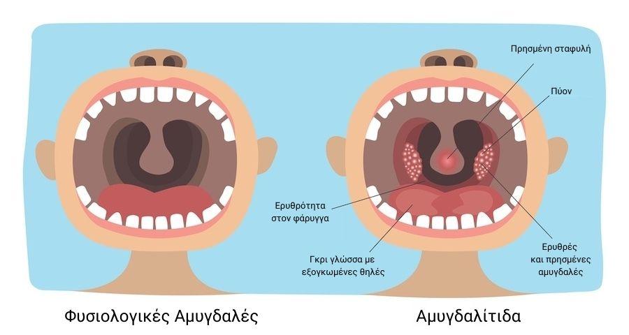 αμυγδαλίτιδα