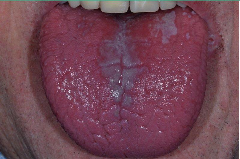 καντιντίαση στόματος 2