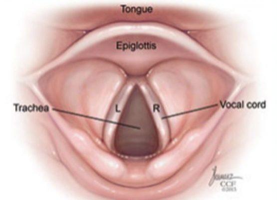 Βλάβες Φωνητικών Χορδών